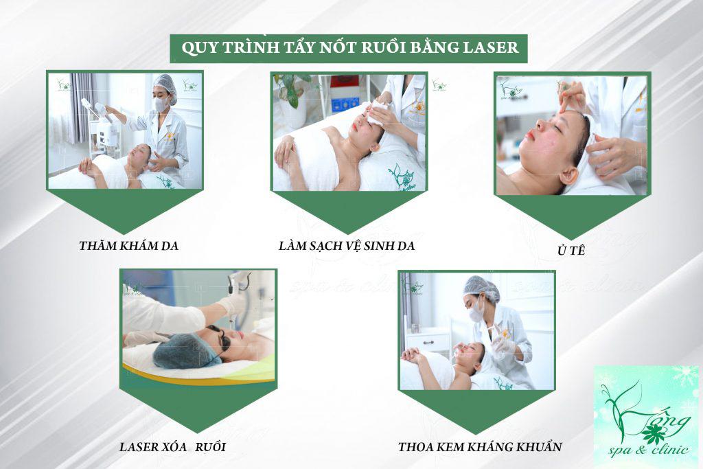 tay-not-ruoi-bang-laser